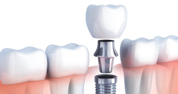 best dental implants in abu Dhabi