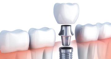 Dental implants Abu Dhabi