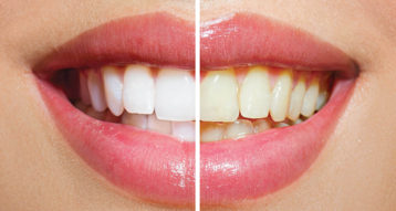 best teeth whitening abu Dhabi