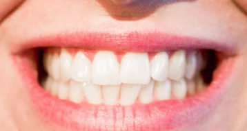 best teeth whitening abu Dhabi