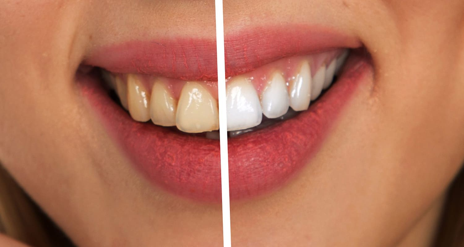 Facts about whitening